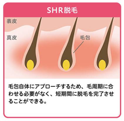 SHR方式